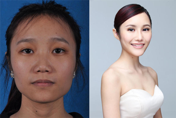 more crazy photos of chinese plastic surgery amped asia