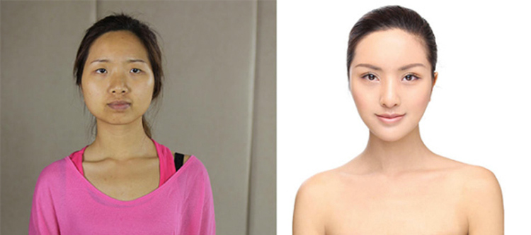 Chinese Plastic Surgery
