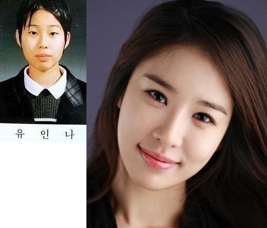 10 SHOCKING Photos Of Korean Celebrity Plastic Surgery